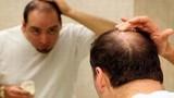 Những thực phẩm tốt cho mái tóc nên bổ sung ngay
