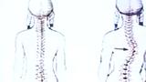 Video: Kỳ lạ thiếu nữ có cột sống như chữ S