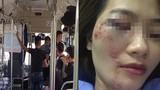 Khởi tố vụ án nhóm thanh niên đánh nữ phụ xe buýt nhập viện