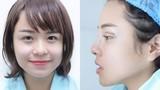 Thái Trinh thừa nhận sửa mũi, cắt mí để cải thiện nhan sắc