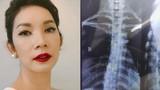 Xuân Lan tiết lộ bị cong vẹo cột sống phải nắn bẻ xương