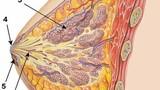 Tìm ra thuốc ngăn tế bào ung thư vú di căn