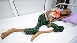 Những bức hình ám ảnh về tình trạng suy sinh dưỡng ở Yemen