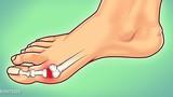 Tuyệt chiêu giảm đau hiệu quả cho người mắc bệnh gout