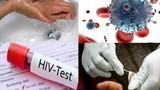 Ngay khi phát hiện phơi nhiễm HIV, cần phải làm gì?
