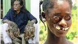 Trở thành quỷ dữ bị dân làng xa lánh vì những căn bệnh hiếm gặp