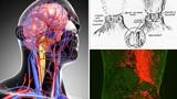 Bác sĩ Italy tuyên bố năm 2017 có thể ghép đầu người