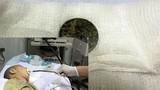Pin mắc kẹt trong thực quản, bé 17 tháng tuổi suýt chết