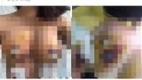 Hãi hùng những bộ ngực biến dạng sau nâng cấp đặt túi ngực