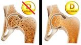 8 dấu hiệu của cơ thể nhắc nhở bạn cần bổ sung ngay vitamin D