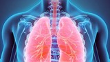 """Mắc bệnh viên phổi """"dễ như chơi"""" bởi lý do thường gặp"""