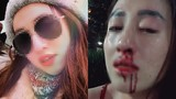 """Vợ xinh bị chồng đánh gãy mũi ở TP HCM: nên """"oánh"""" trả... còn không, ly hôn?"""
