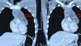 Ho nhói nhẹ, vào viện phát hiện khối u ngực chèn ép nguy hiểm