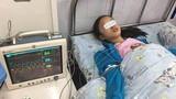 Nặn mụn trên mặt, cô gái 19 tuổi bị nhiễm trùng nội sọ