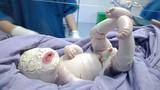 Thương tâm bé sơ sinh mắc bệnh hiếm da toàn thân dày, nứt từng mảng