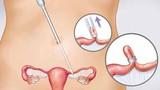 6 cách ngừa ung thư buồng trứng đơn giản