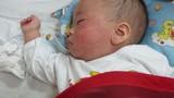 Dịch sởi bùng phát: Bộ Y tế ra công điện khẩn