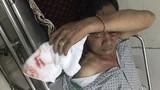 Nguyên nhân ban đầu khiến người cựu chiến binh bị đánh ở Hà Nội