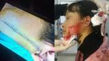 Mâu thuẫn buôn bán quần áo, nữ sinh Thanh Hóa bị rạch mặt dã man