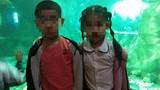 Hà Nội: Hai cháu bé bỏng nặng nghi bị hàng xóm hắt nước sôi