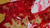 Thịt lợn đỏ như máu chứa vi khuẩn gây viêm màng não