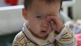 Bé trai 2 tuổi suýt bị mù vĩnh viễn chỉ vì bố mẹ 'lười'