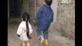 Bệnh lạ khiến người giống ếch ở Hà Nội