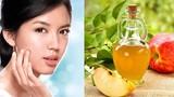 Cách dùng giấm táo trị mụn hiệu quả cho phái đẹp