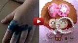 Tác hại đáng sợ của việc đeo nhẫn đồ chơi trôi nổi