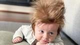 """Bé 4 tháng tuổi có mái tóc """"tươi tốt lạ kỳ"""""""