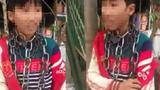 Video: Bé trai ở Thanh Hóa bị quấn vòng xích quanh cổ