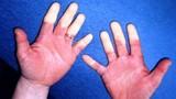Những bệnh tật dễ trở nặng hơn trong mùa thu