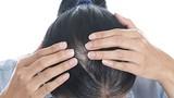 Video: Bài thuốc đơn giản chữa tóc bạc sớm