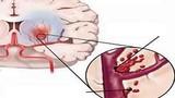 Mối liên hệ giữa đột quỵ não và cao huyết áp
