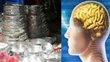 Suy thoái não vì dùng nồi nhôm dởm