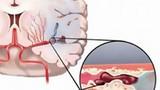 Đau nửa đầu vai gáy có phải thiếu máu não?