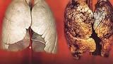 Loại nước uống vào sẽ lọc sạch phổi cho người hút thuốc lá