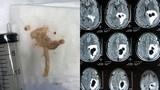 Phát hoảng bị sán làm tổ trong não vì mê món khoái khẩu