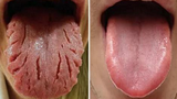 Các dấu hiệu cảnh báo bệnh trên lưỡi