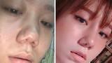 Vụ khách hàng tố Klain Beauty làm hỏng mũi: Công ty Klain dính phạt nhiều vi phạm