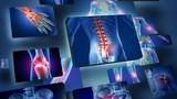 Mua thực phẩm chức năng chữa đau xương khớp, viêm khớp nào tốt?