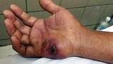 Liên tiếp xảy ra rắn độc cắn người, gây tử vong ở Lạng Sơn