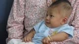 Di chứng bệnh viêm màng não ở bé bị đâm xuyên sọ