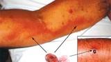 Những điều cần biết về virus gây bệnh sốt mò nguy hiểm