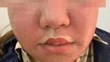 Đắp mặt nạ đông y trắng da, mặt mọc đầy mụn mủ kinh hoàng
