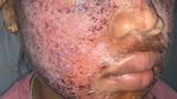 Khuôn mặt lở loét đáng sợ của thiếu nữ 17 tuổi vì lột trắng da