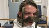 Đi khám đau đầu không ngờ phát hiện 16 khối u ác tính trong não