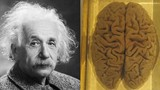 """Bộ não của thiên tài Einstein được """"mổ xẻ"""" thế nào?"""