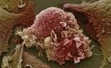 Sự phá huỷ tàn khốc của tế bào ung thư
