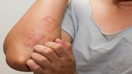 Dấu hiệu cơ thể nhiều độc tố, cái thứ 2 coi chừng ung thư